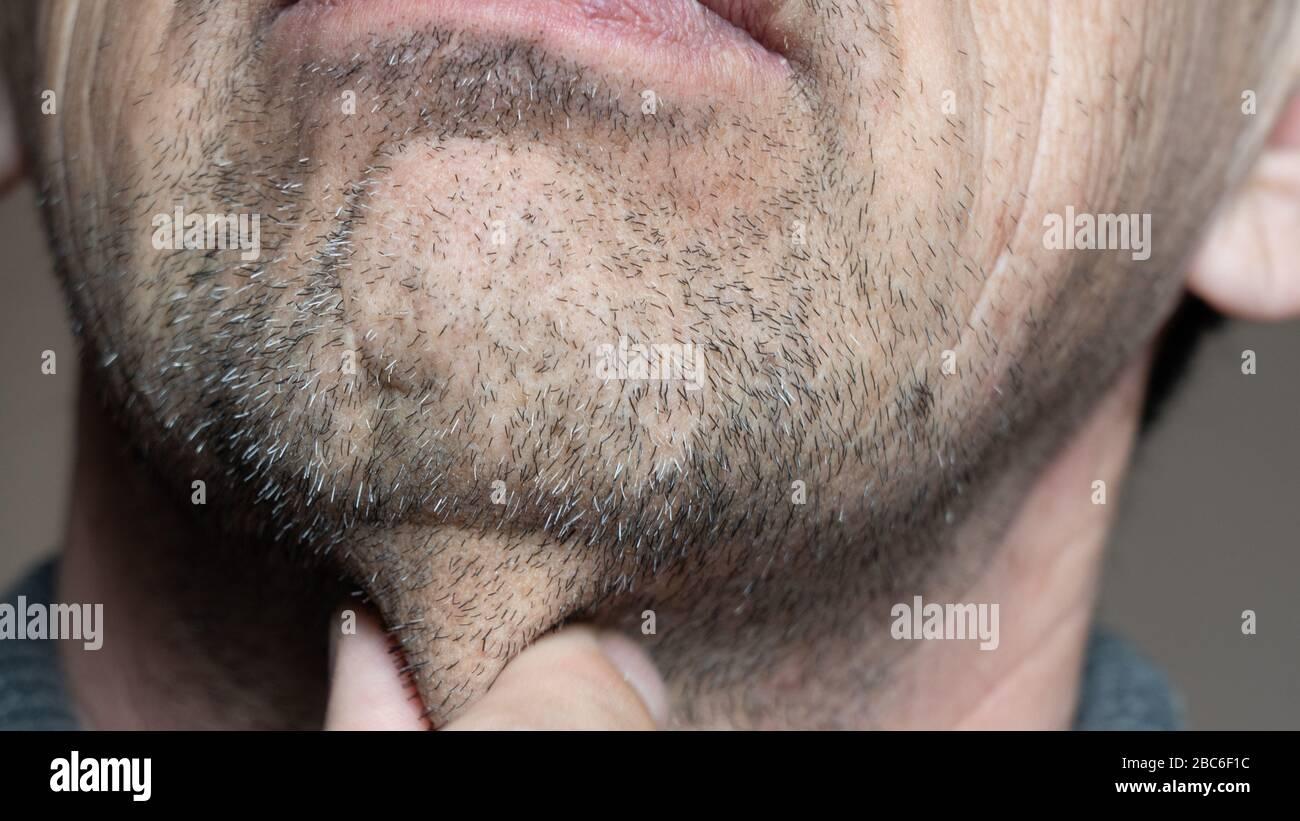 Poils du menton. Un vieil homme barbu touche son visage inrasé avec sa main. Pas rasé quelques jours. Les cheveux sur le visage d'un homme, une barbe courte Banque D'Images