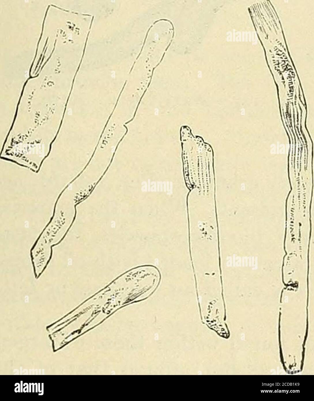 . La pratique de la médecine; un livre de texte pour les praticiens et les étudiants, avec une référence spéciale au diagnostic et au traitement . Figure 121.—Fig. Épithéliale 122.—pus Cast.Casts et GranularFatty Renal CEUS. 123.—diffusion de sang—{prise de sang). La substance de base des moulages de sang est probablement la fibrine du sang.si l'épithélium est fermement attaché à la membrane basale du thétube et reste derrière lorsque le coulis, ou si le tube est entirelybereft de l'épithélium, alors est le casting une hyaline (Fig. 124) ou sans structure. Banque D'Images