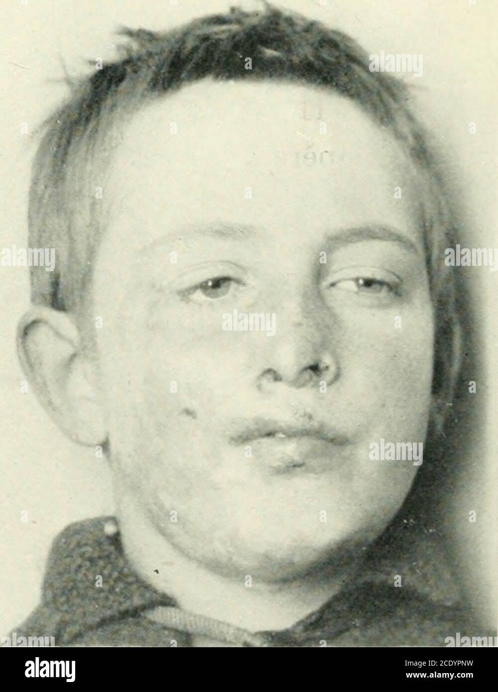 . La revue britannique de dermatologie . Figure 2.—7 mai 1922: Après Finseiitreatment. Grande surface cicatrisée, butylupus s'étendant aux marges. Figure 3.—OOTB de janvier. 1923: Après 5 mois de luminothérapie avec traitement nolocal. POUR ILLUSTRER LA DR. SEQUEIRAS ARTICLE SUR LES BAINS LÉGERS À ARC DE CARBONE DANS LE TRAITEMENT DU LUPUS VULGARIS. LUMIÈRE CARBONE-ARC DANS LE. TRAITEMENT DU LUPUS VULGARIS. 97 et d'autres facteurs d'intérêt biologique, et aussi d'essayer l'étiect du traitement sur d'autres conditions. J'illustre ici un cas caractéristique montré avec un autre à la Section Dermatologique en janvier. Le garçon, dont Banque D'Images