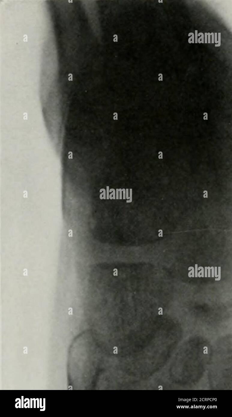 . Anatomie et pathologie vivantes ; le diagnostic des maladies au début de la vie par la méthode de Roentgen . PLAQUE ].-,n. DÉVELOPPEMENT RETARDÉ^FENT DU SCAPHOÏDE. Garçon, 6 ans. (Durée de vie.) La flèche pointe vers un scapuh-oid légèrement développé. Les autres os du pied sont normaux. Pi.ATE 159. l, i % Pi&gt ; ATI : Kin. OSSIFTCATTOV PRÉCOCE OL TIIK VVVKH IIIIIIIIIYSIS (SI TTTF. IIBIA. (Durée de vie.) 1. Tik iionual (Icvclopiuriil de la Cpiphy.sis supérieure de la fibula. B. les premiers os-sificatioii de l'u])p(-r ( i09i)iphyse du tihui wliich ont cessé de se développer en synchronisation avec le thesfibula. C. tôt Banque D'Images