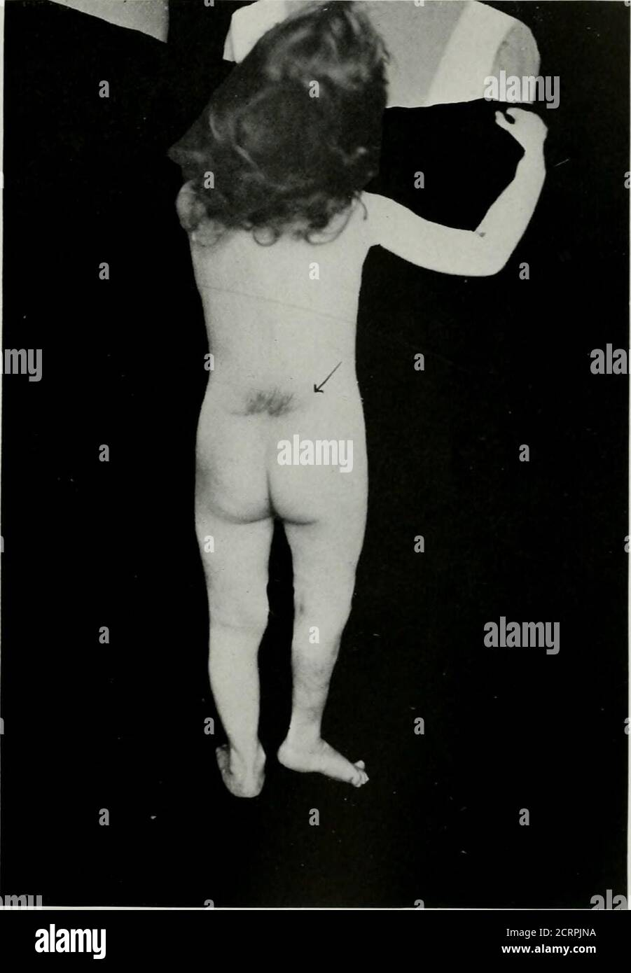 . Anatomie et pathologie vivantes ; le diagnostic des maladies au début de la vie par la méthode de Roentgen . PI.ATK 42. SIIXA HIIDA OCCN.TA. Fille, 3i année^. (Même sujet que les plaques 43 et 44.) La flèche pointe.s vers les cheveux et .^kin qui couvrent le défaut dans la vertèbre-. Congénital di.slocatiou de la hanche risiht. Plateau 42. PLAT1-. 43. PIZA BIFIDA OCTTLTA. Fille, âge 3J ans. (Même sujet que les plaques 42 et 44.) A. la troisième vertèbre lombaire rétrécie. B. le troisième disque intcivertébral rétréci. C. sacralisation de la cinquième vertèbre lombaire gauche. D. juste au niveau du risiht et en dessous du point de la flèche i.-; fusu Banque D'Images