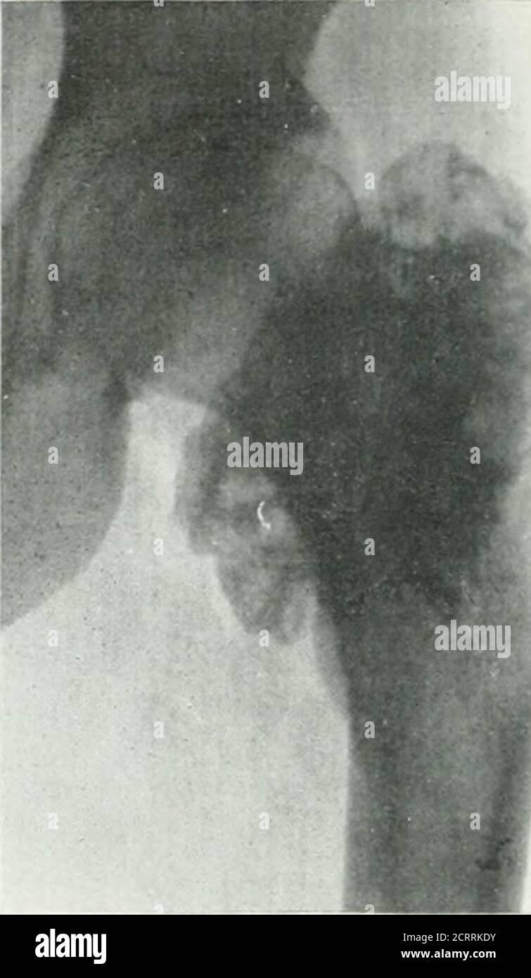 . Archives de la médecine physique et de la réadaptation . types d'ossify.ngperiostitis bénins. Avec t^e rest exceptionsfait la nouvelle croissance de l'alésage encercler l'arbre. Les petites zones isolées de formation osseuse peuvent être présentes dans les lésions bénignes. Advence g.vcn dans ce cas: Je wroteth; t la radiographie suggéré sircoma, butthe m?ss de l'os palparés comme une lésion be-nign. Jusqu'à présent, wehTe neer guérit un sarcome par ampution située au-dessus du tiers médian du fémur. La résection avec la désotransplantation du péroné serait possible dans ce cas. Dr McClure, chirurgien à l'hôpital Ford de Det Banque D'Images