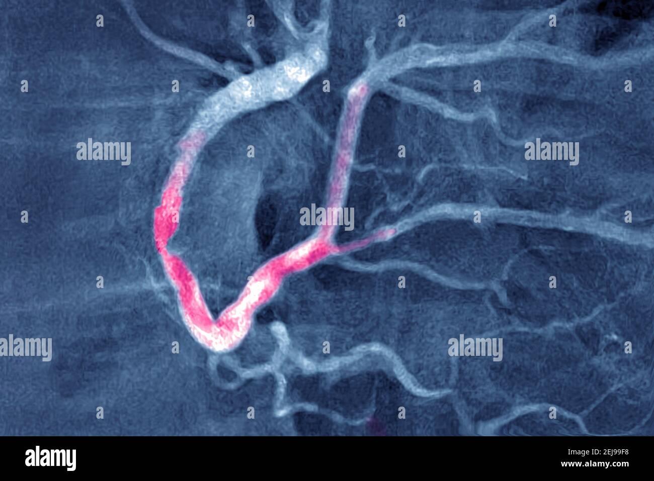 Infarctus du myocarde avec un thrombus significatif Banque D'Images