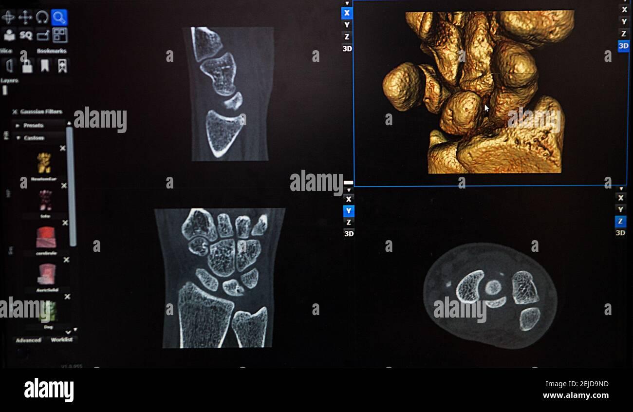 Reconstruction 3D à partir d'une image scanner du poignet d'un patient pour une impression 3D personnalisée. Banque D'Images
