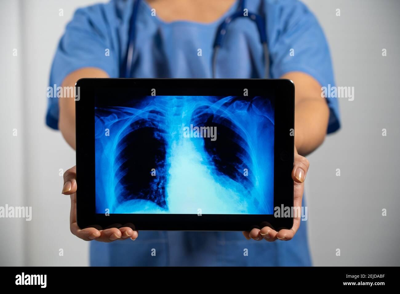Femme médecin tenant un écran avec rayons X des poumons. Banque D'Images