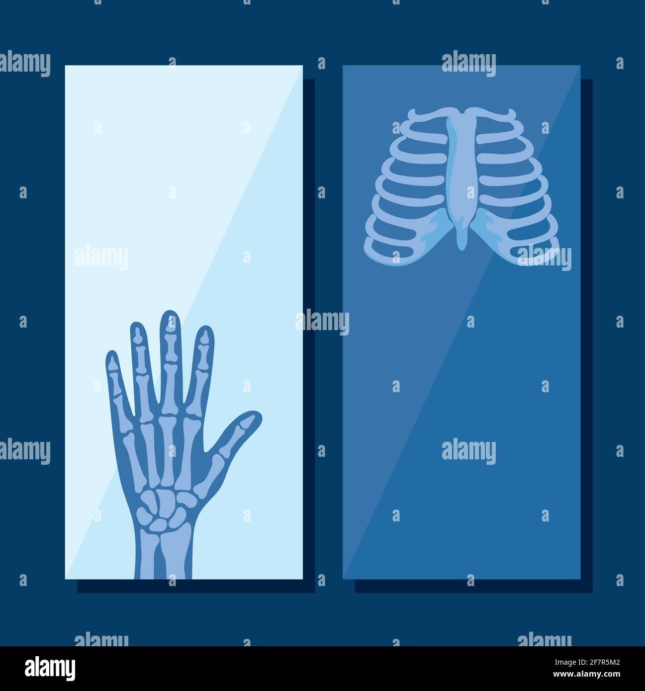 ensemble d'affiches de rhumatologie Illustration de Vecteur