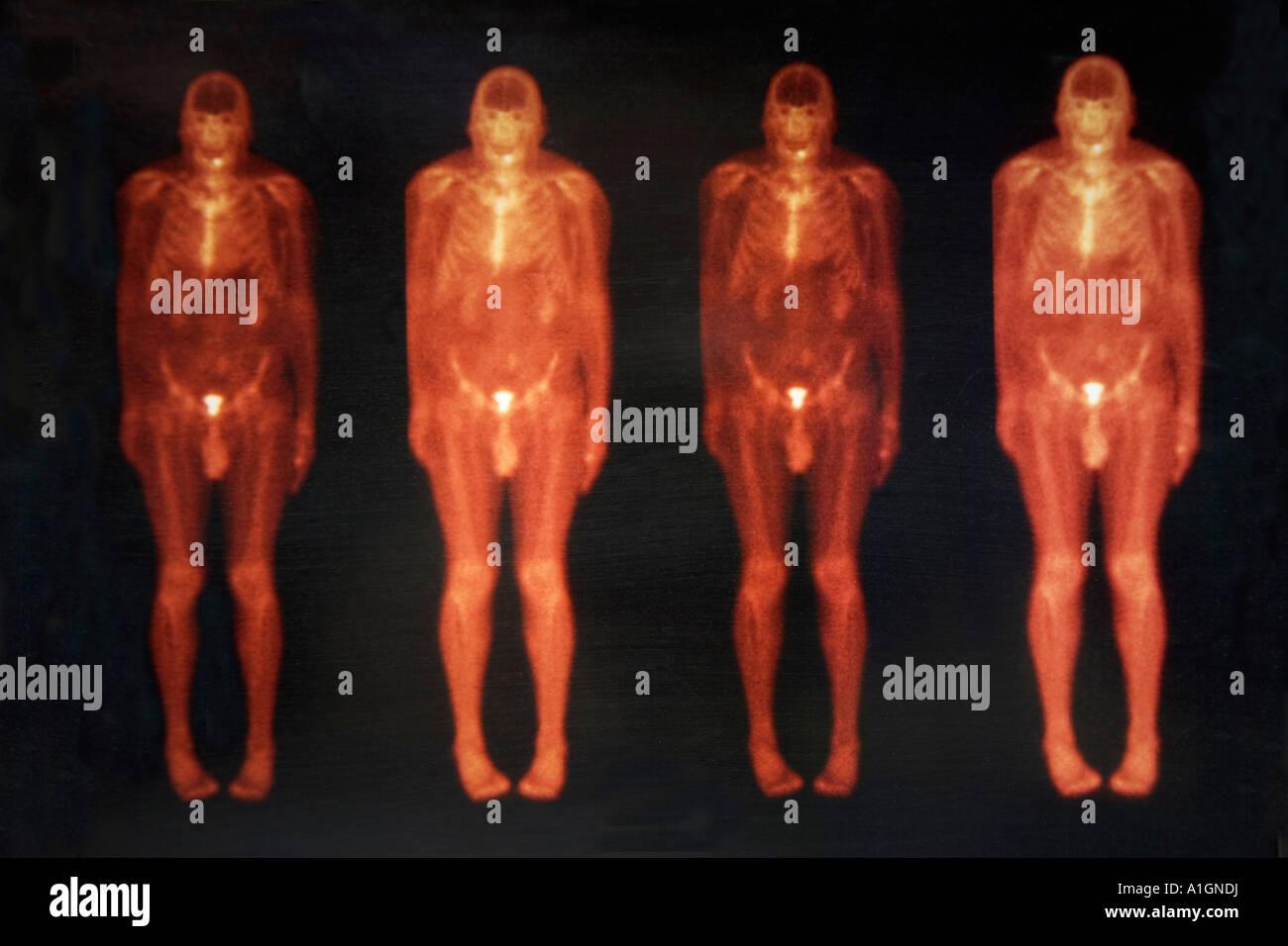 La scintigraphie osseuse au technétium Corps entier d'un homme. Photo Stock