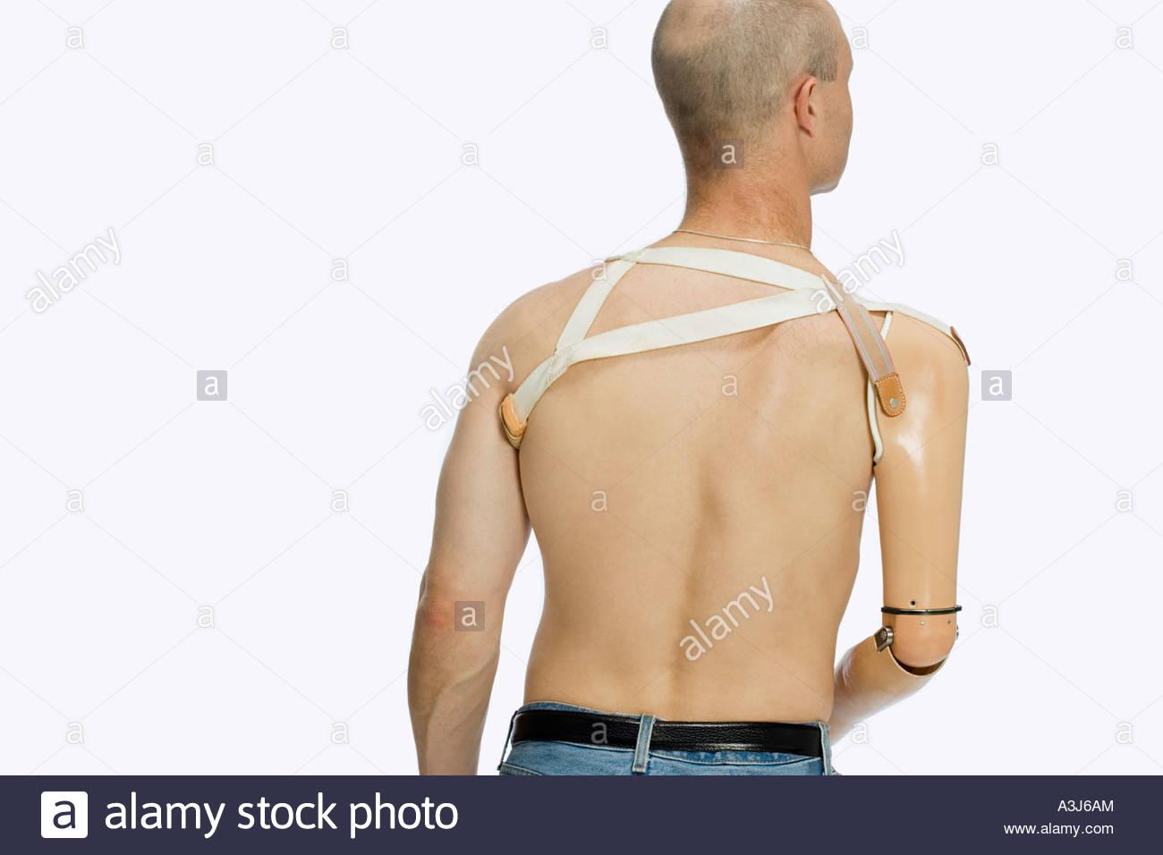Vue arrière d'un homme avec un membre artificiel Photo Stock