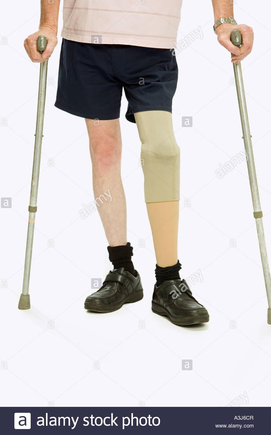 L'homme avec une jambe artificielle Photo Stock