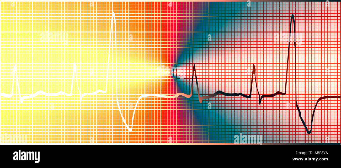 Abstraite de l'électrocardiogramme électrocardiogramme concept Photo Stock