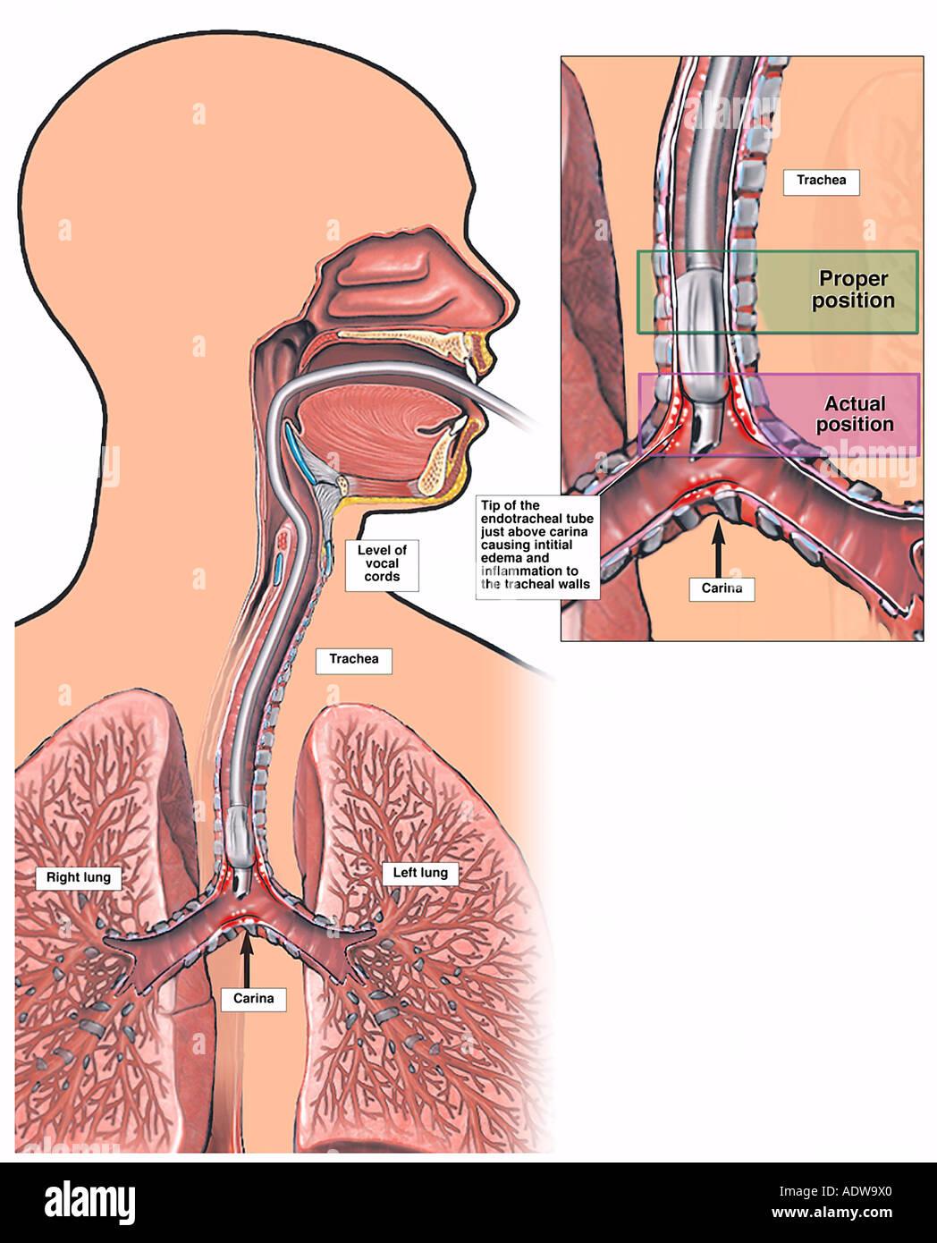 Tracheal Intubation Photos & Tracheal Intubation Images - Alamy