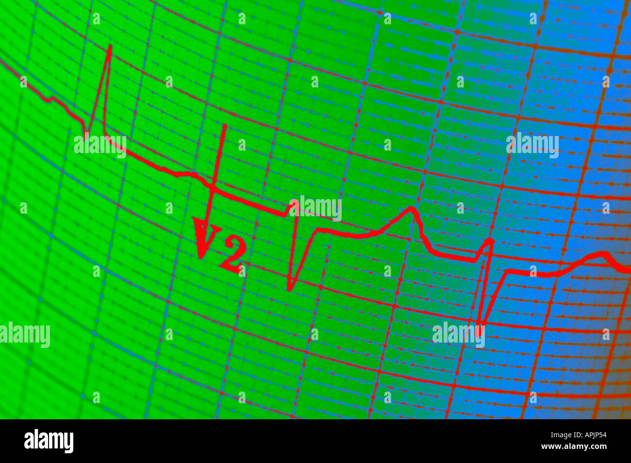 Électrocardiogramme électrocardiogramme concept vue rapprochée Photo Stock