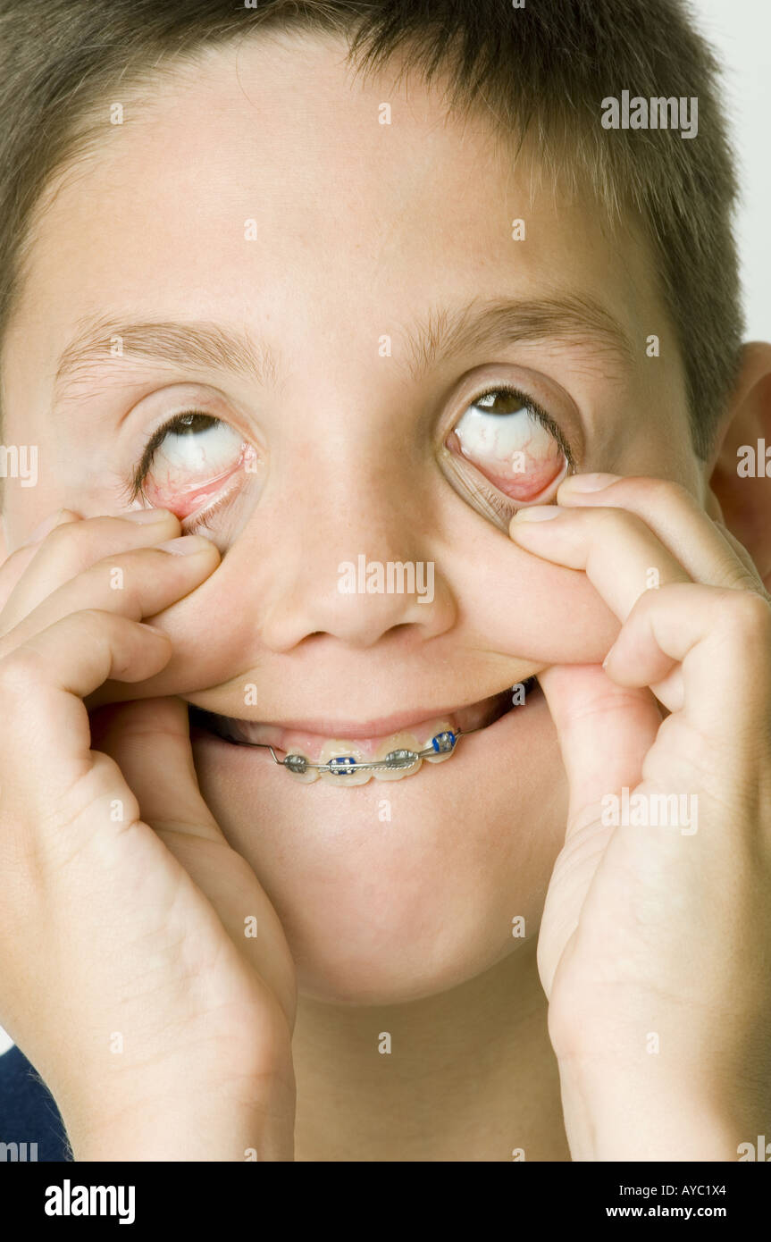 Boy making face grotesque. Photo Stock