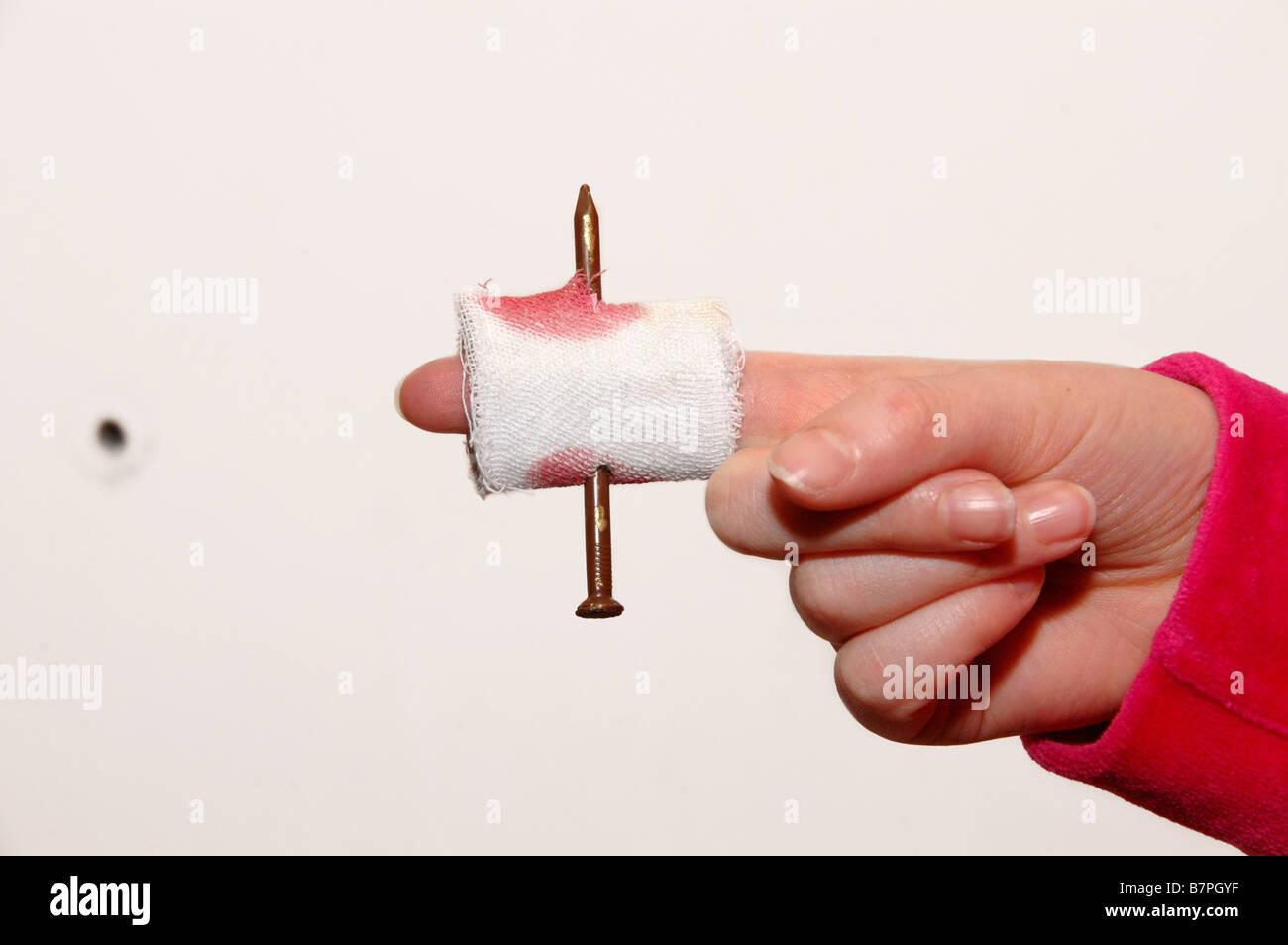 Un doigt de l'enfant avec un faux ongle percé à travers elle et avec un bandage ensanglanté. Photo Stock