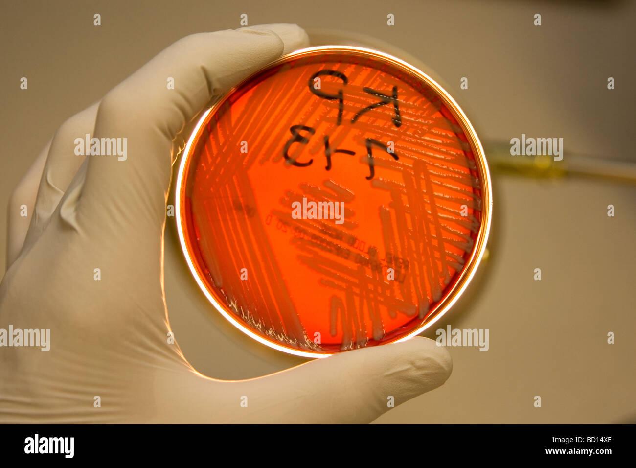 Le microbiologiste est titulaire d'une boîte de pétri growimg les bactéries, Klebsiella pneumoniae. Photo Stock