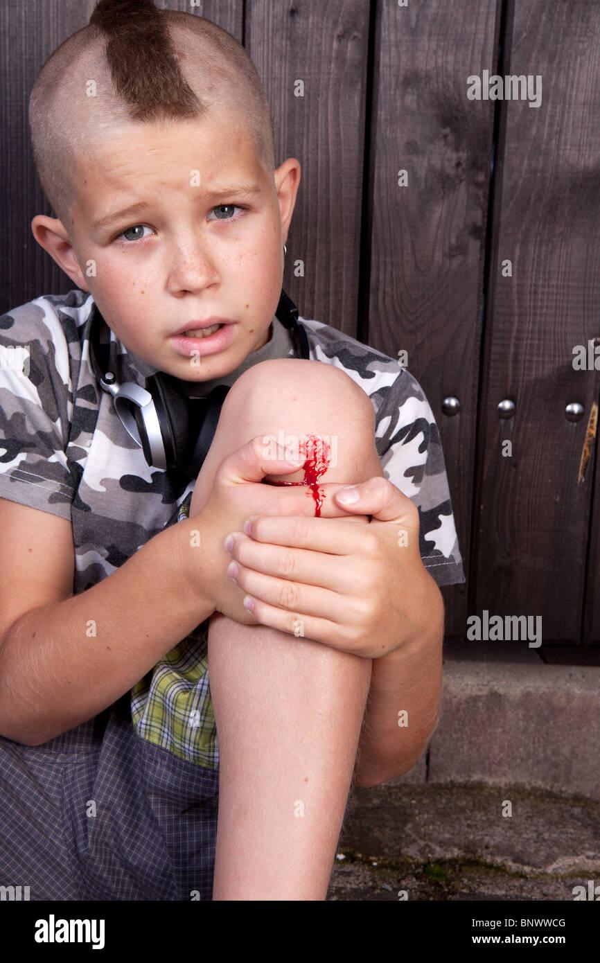 Jeune garçon blessé au genou avec saignement s'asseoir à l'extérieur Photo Stock