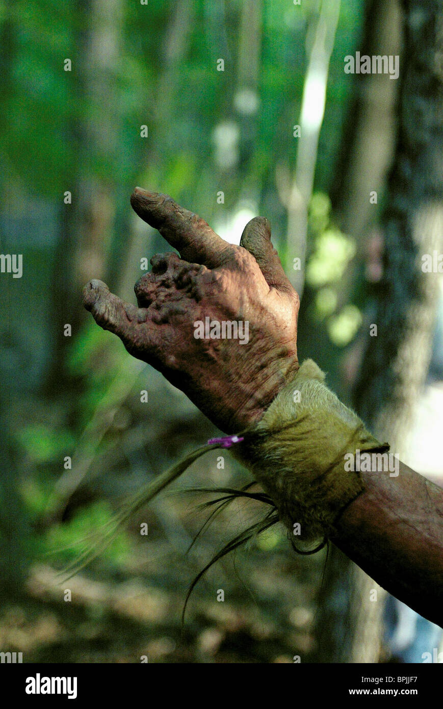 Main défigurée mauvais virage (2003) Photo Stock