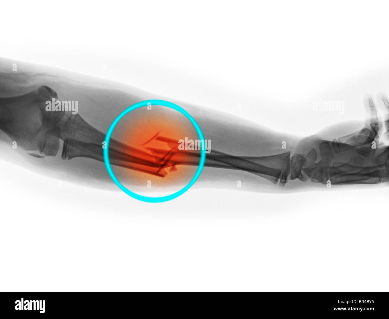 Radiographie d'une fracture de l'avant-bras dans un garçon de 11 ans Banque D'Images
