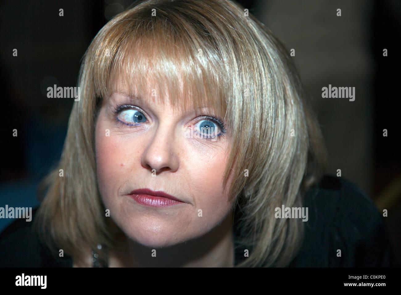 Cross eyed lady avec ésotropie un oeil paresseux qui ressemble à du côté du nez Photo Stock