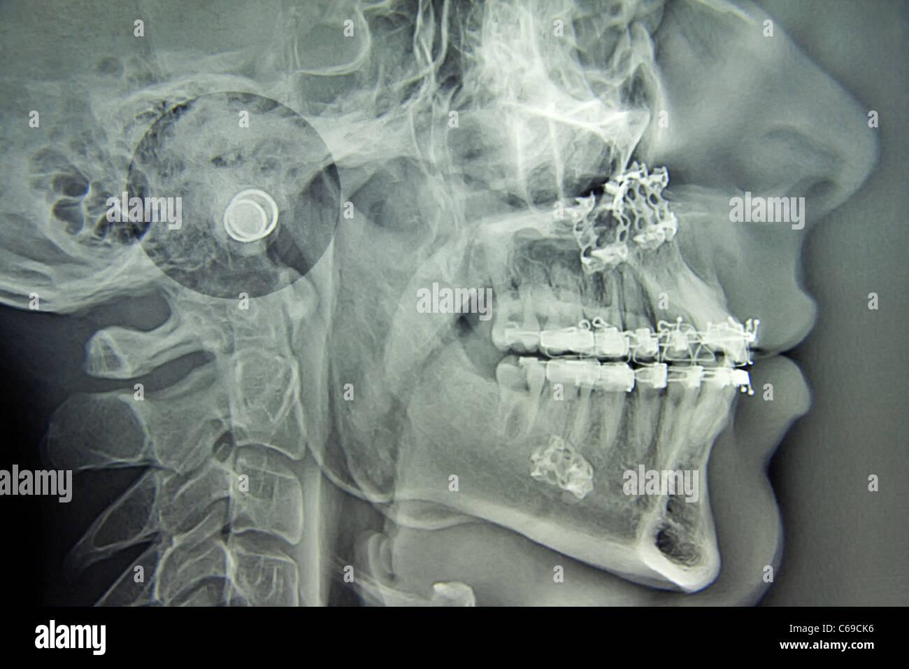 La chirurgie maxillo-faciale Photo Stock