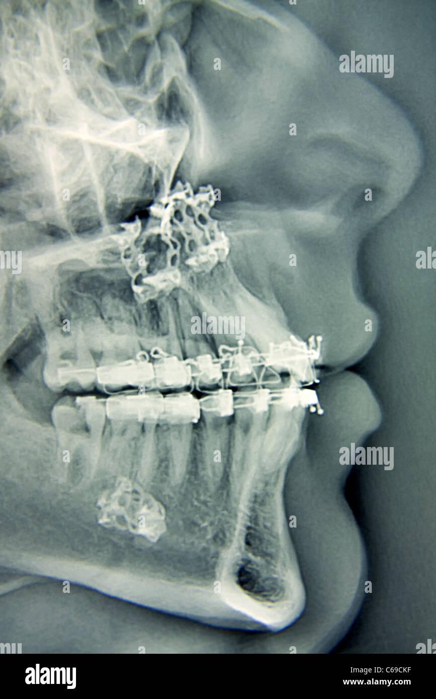 Chirurgie de la mâchoire Photo Stock