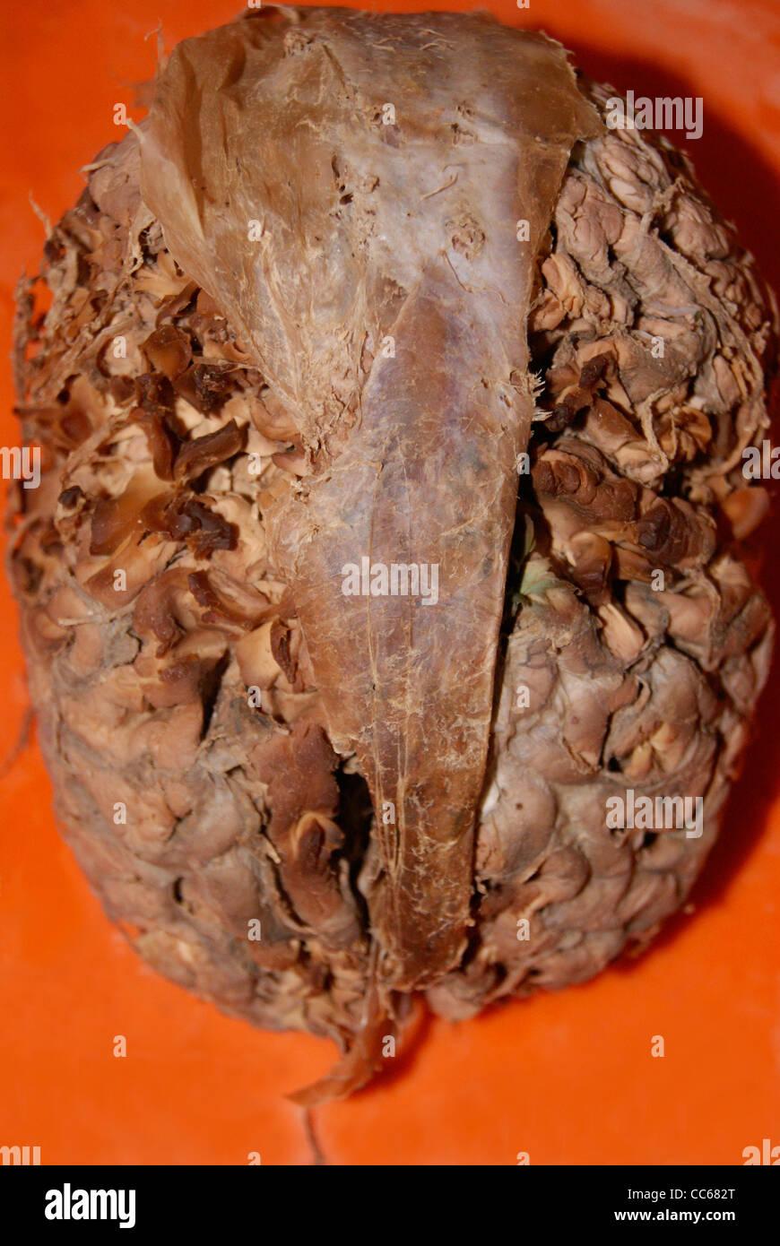 Cerveau humain d'origine ( ) de l'hôpital conservé Photo Stock