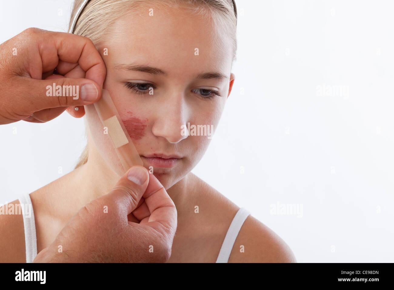 Mains d'appliquer l'adhésif bandage sur girl's (12-13) face à Photo Stock
