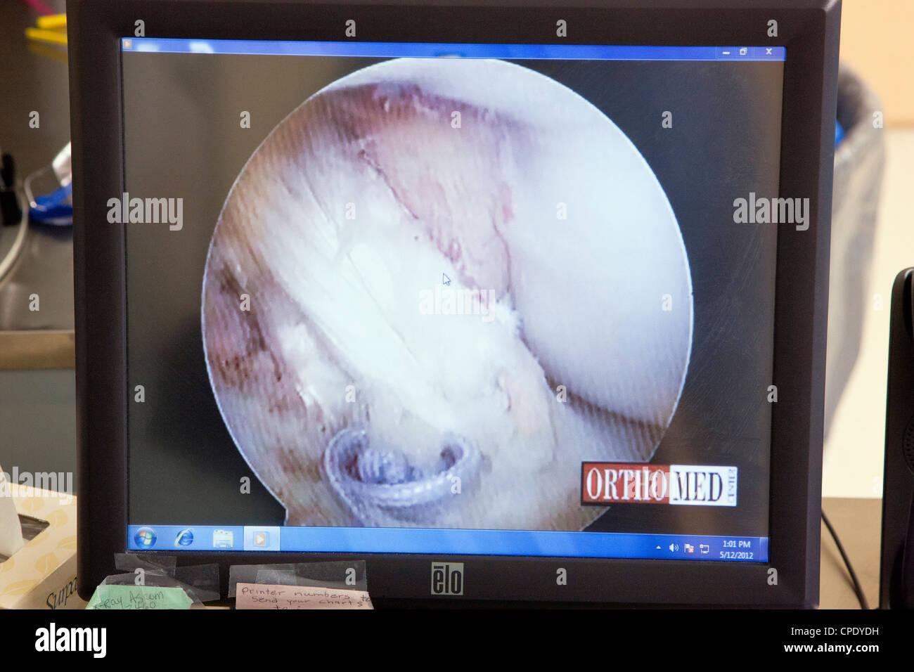 L'arthroscopie du genou affichées sur un moniteur d'ordinateur de la salle d'opération de Photo Stock