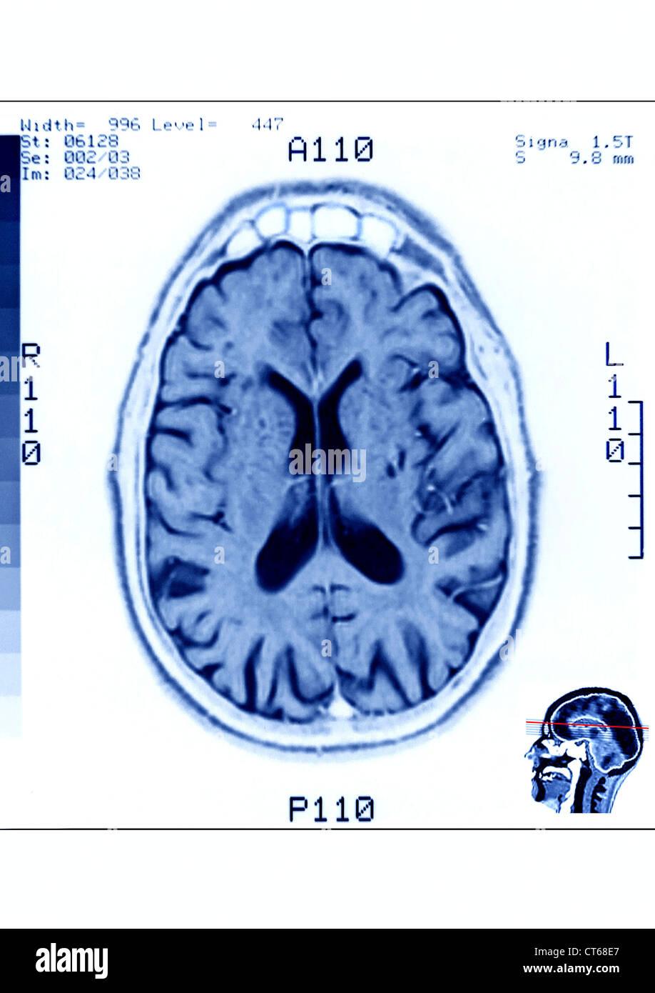 TÊTE, IRM Photo Stock
