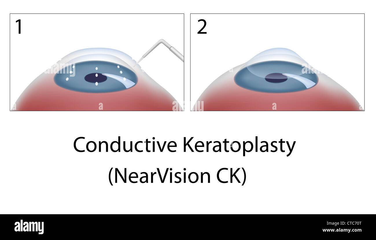 La chirurgie des yeux Kératoplastie Conductive Photo Stock
