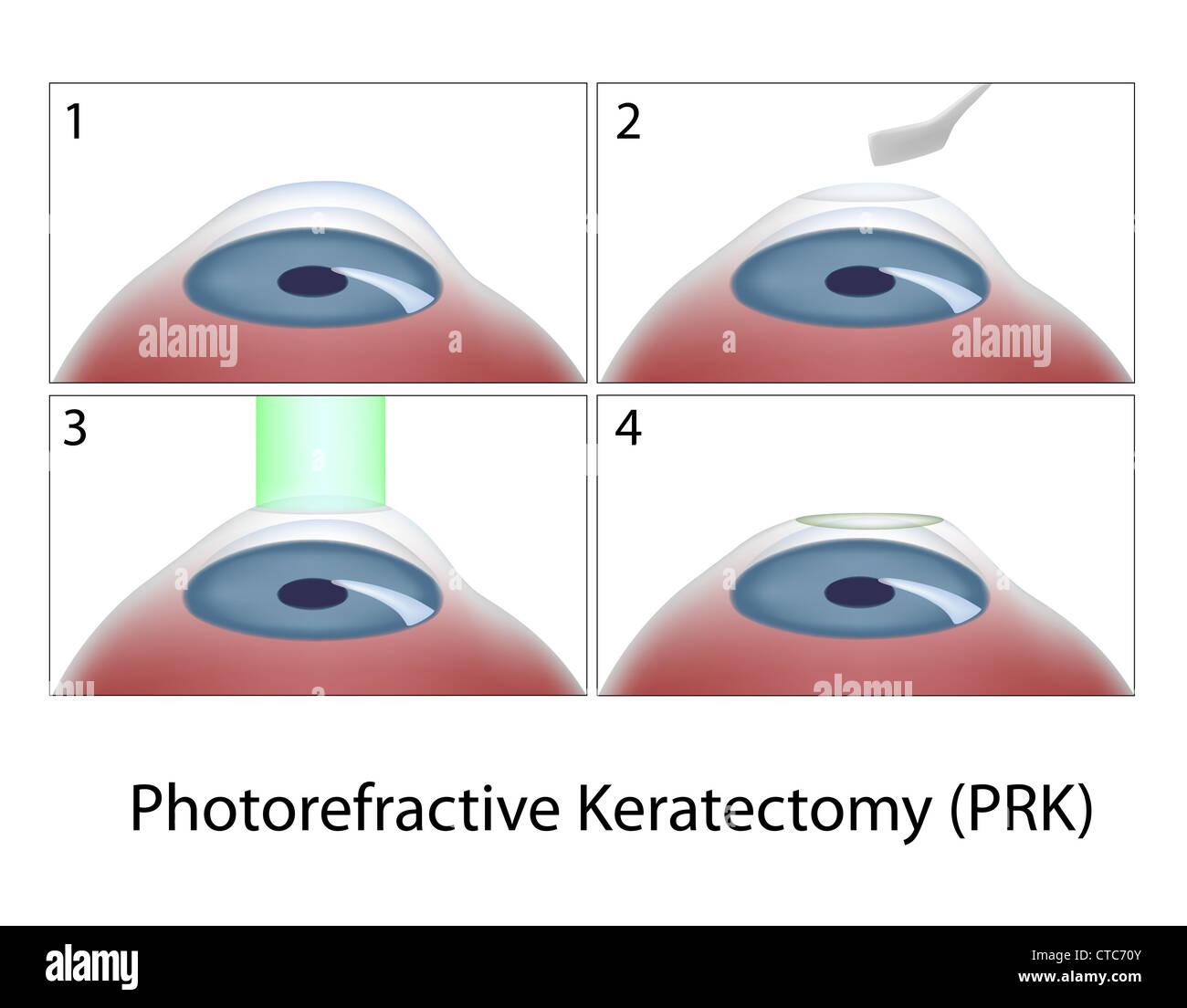 La kératectomie photoréfractive (PRK) Chirurgie Photo Stock