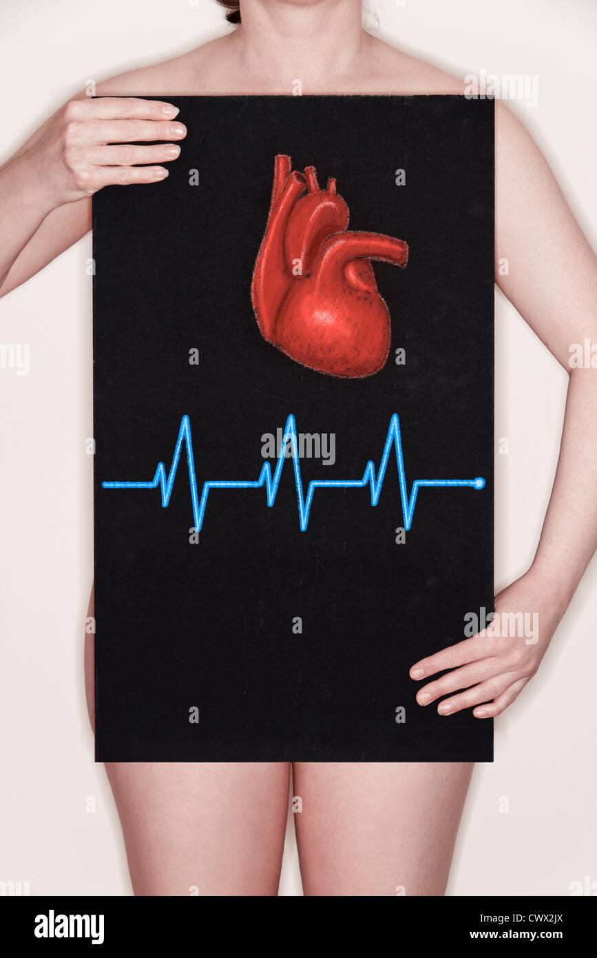 Femme tenant un tableau noir avec une illustration d'un coeur humain et d'un ECG pulse dessiné dessus Photo Stock