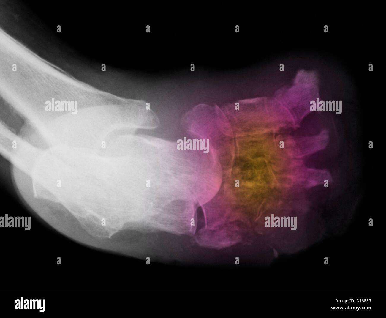X-ray montrant l'amputation pour le diabète Banque D'Images