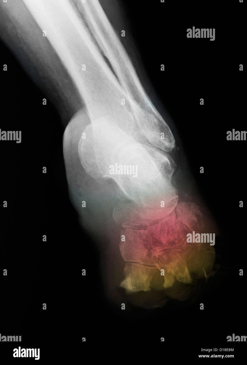 X-ray montrant l'amputation pour le diabète Photo Stock
