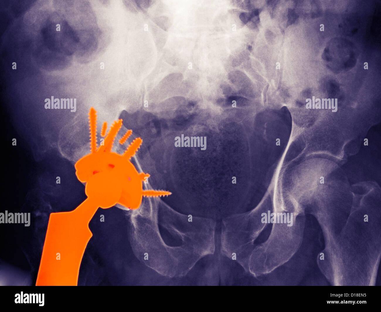 X-ray de remplacement d'une hanche dans un homme de 56 ans Photo Stock