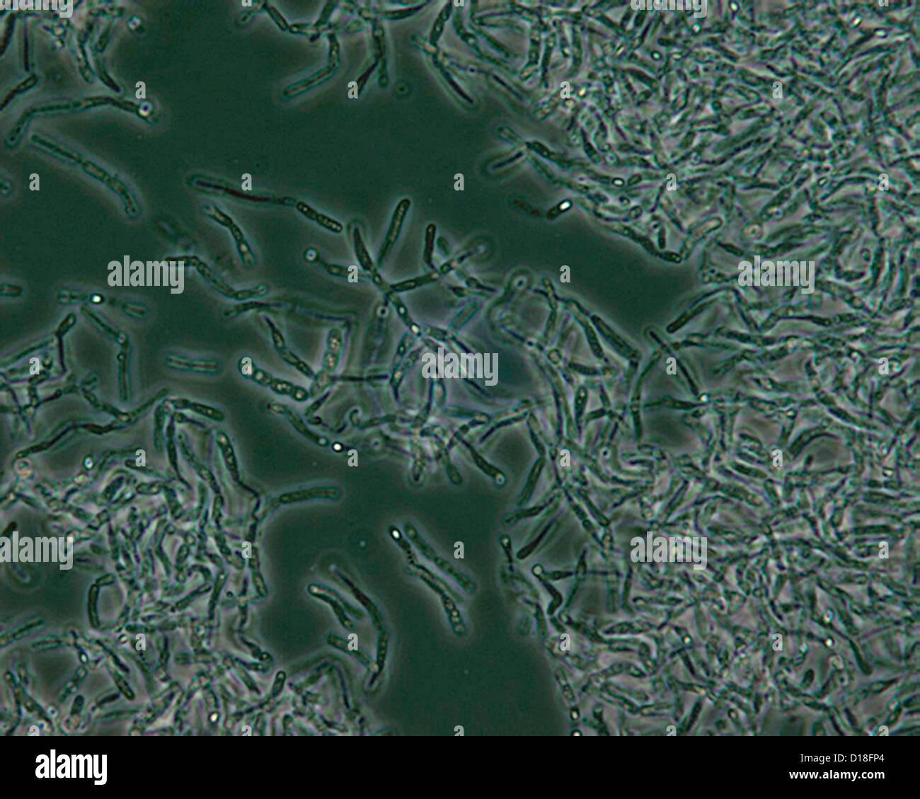 Photomicrographie de spores de Bacillus anthracis Banque D'Images