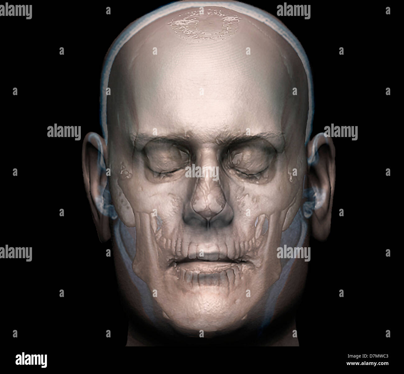 La tête humaine, 3D CT scan Photo Stock