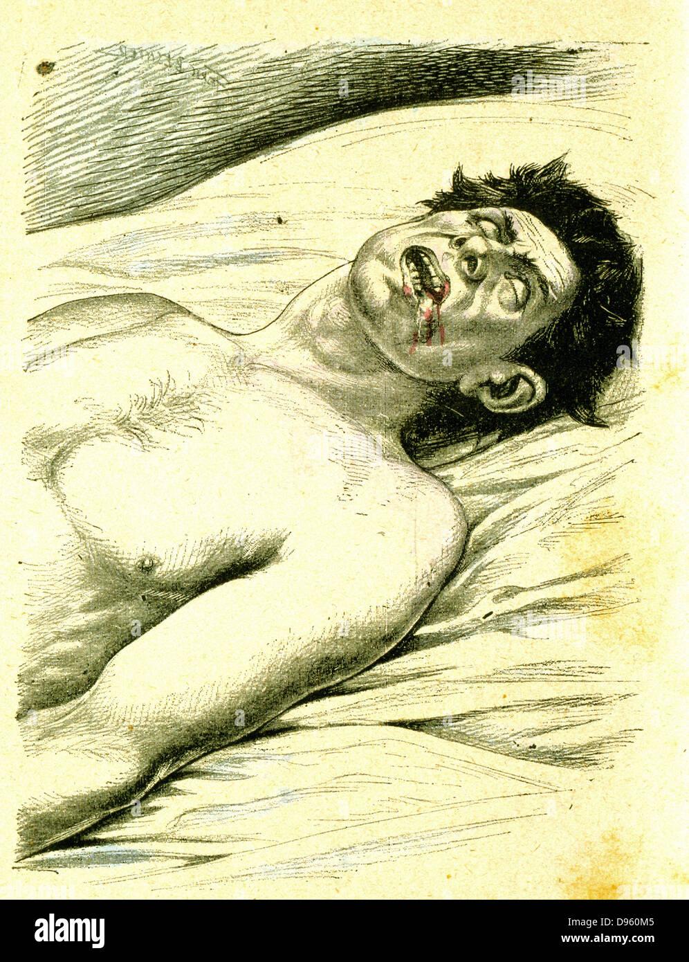L'épilepsie, un sujet souffrant d'un grand mal typique attaque dans laquelle il a mordu sa langue. Photo Stock