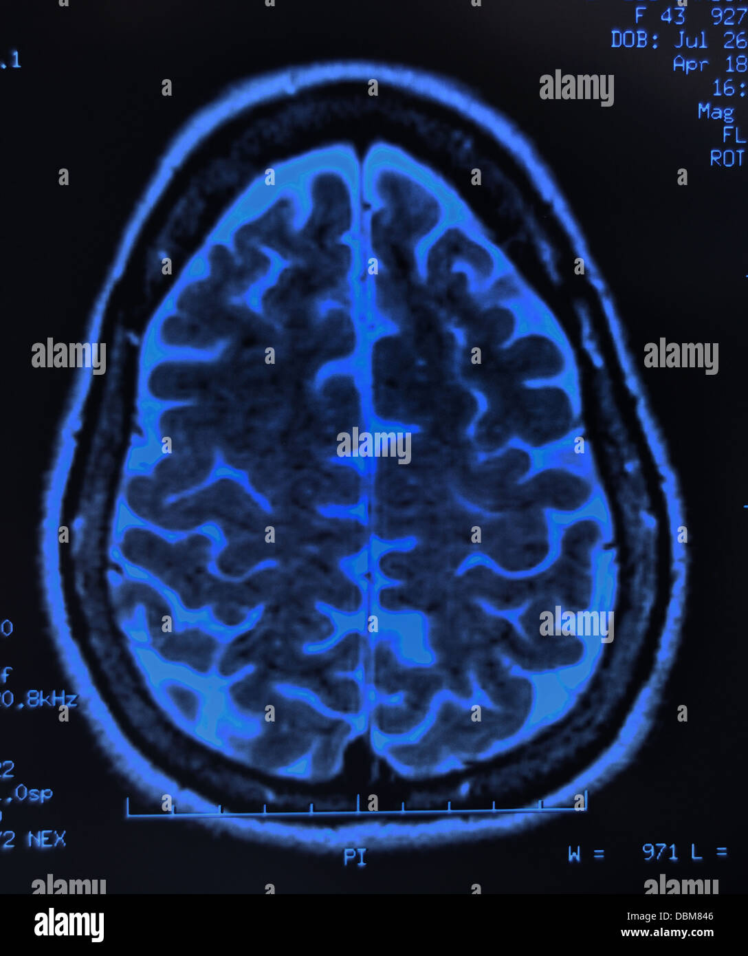 Cerveau humain / scan irm, X-ray Photo Stock