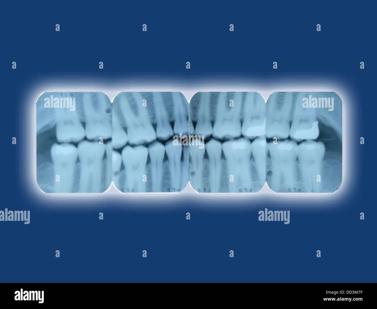 La radiographie dentaire feuilles brillantes sur un fond bleu Photo Stock
