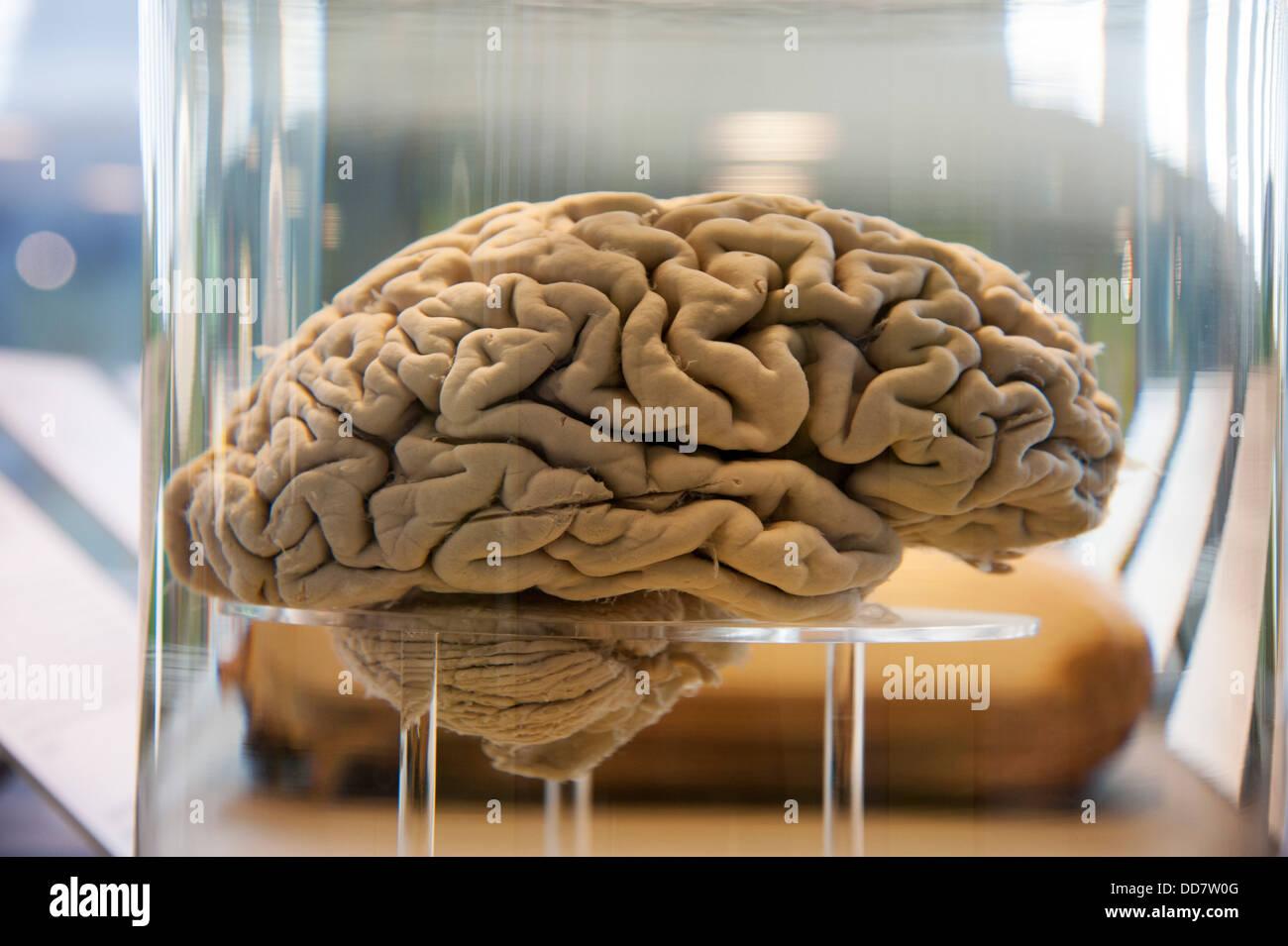 Cerveau humain dans un récipient en verre rempli d'un liquide clair Photo Stock