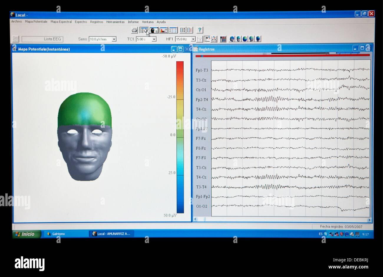 La cartographie, de l'électroencéphalographie, examen neurologique. Hospital Policlinica Gipuzkoa, San Sebastian, Donostia, Euskadi, Photo Stock