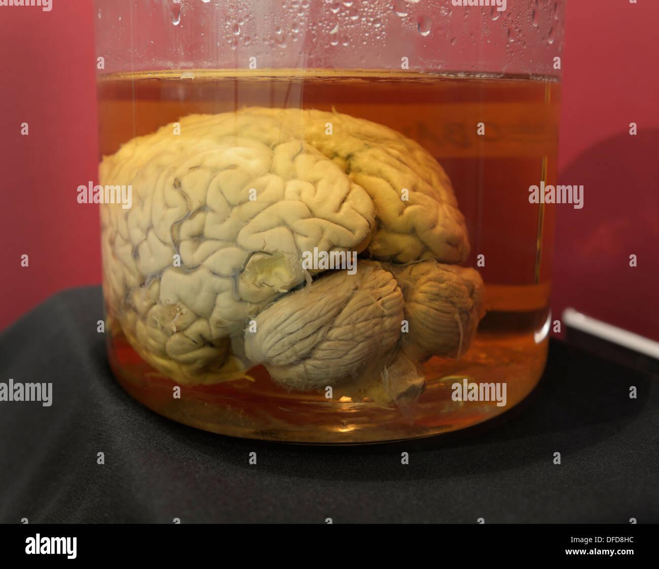 Cerveau humain dans un pot, de l'Université Cornell. Le cerveau fait partie de la Collection du cerveau Wilder Photo Stock