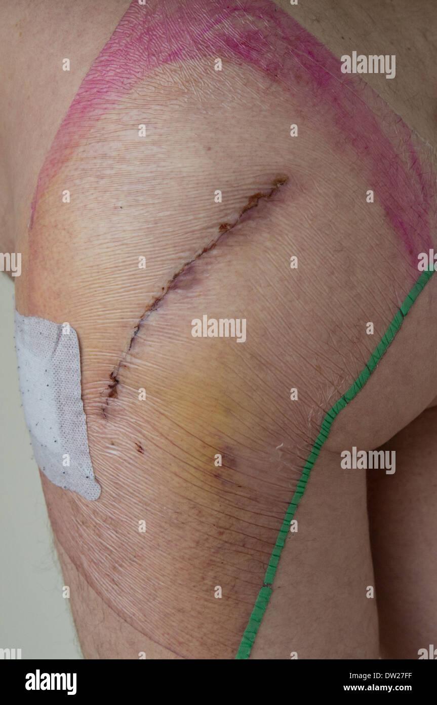 Cicatrice après chirurgie de remplacement de la hanche Photo Stock