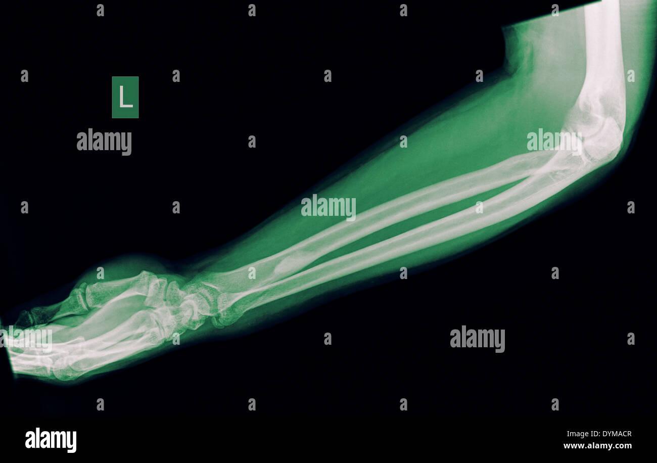 Avant-bras d'un patient de sexe masculin de 44 ans avec une fracture du cubitus distal Banque D'Images