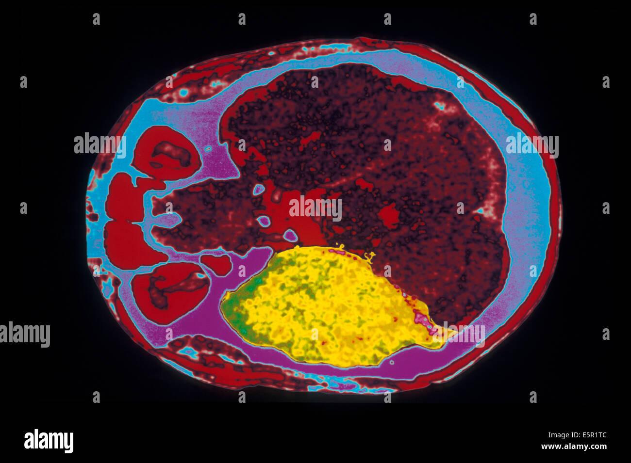 Encephalitis Brain Photos & Encephalitis Brain Images - Alamy