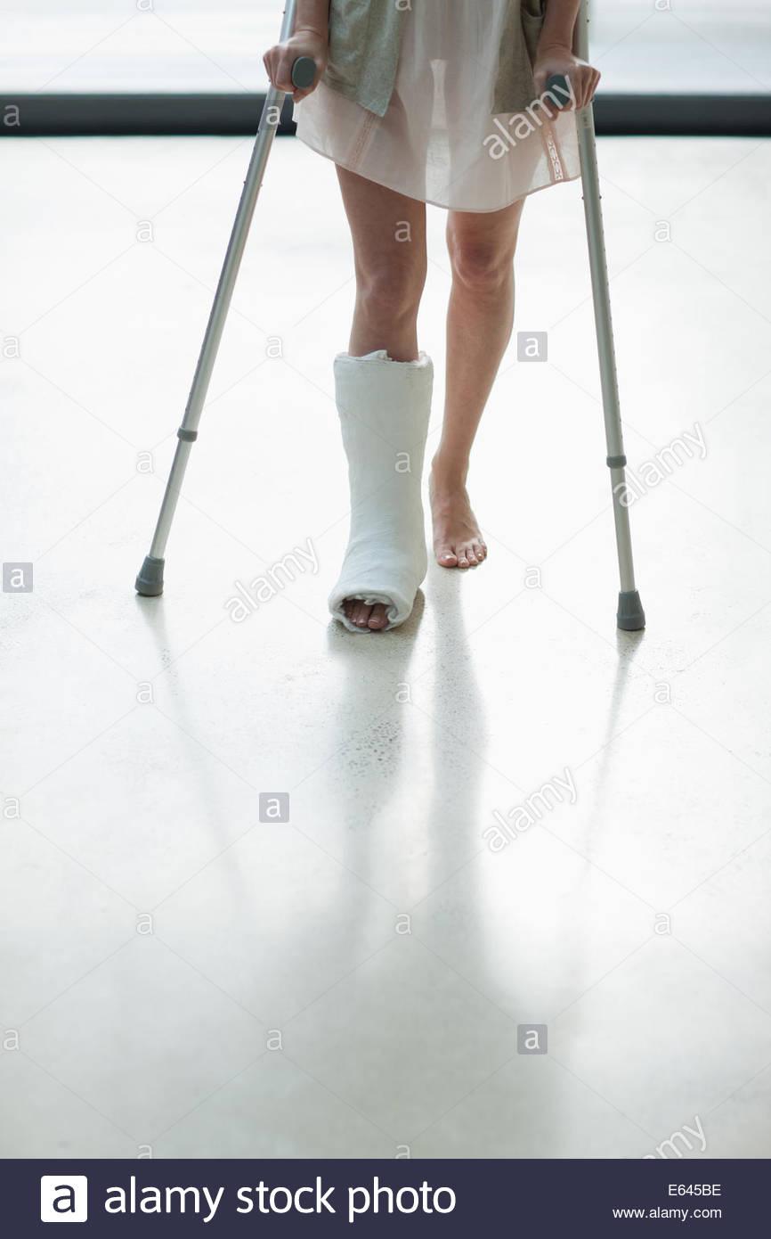 Personne avec cast sur jambe à l'aide de béquilles Photo Stock