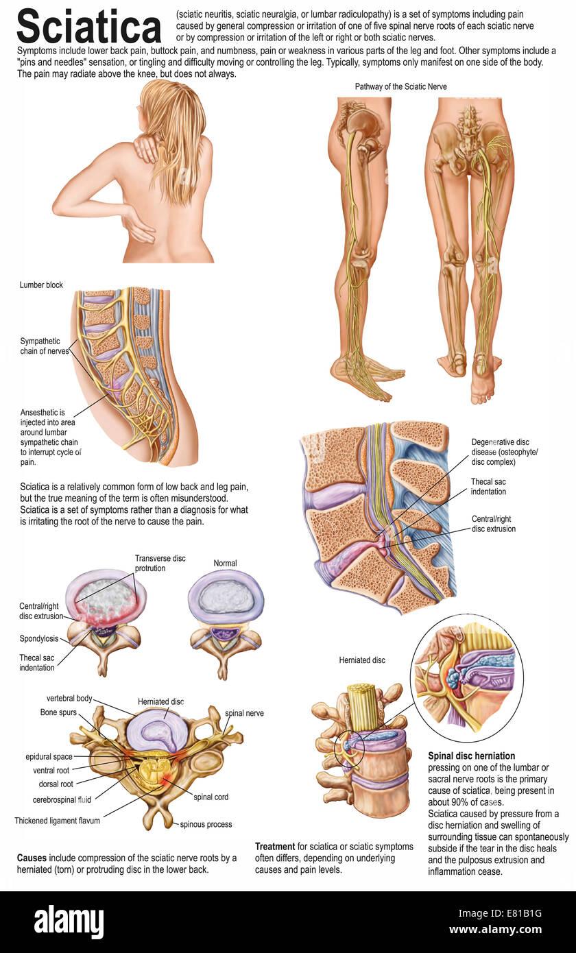 Dossier médical montrer les signes et symptômes de la sciatique. Photo Stock