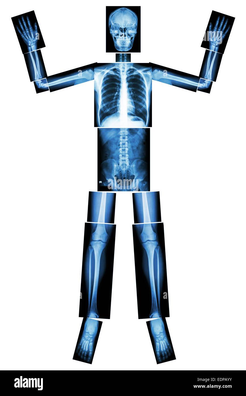 Renoncer à l'ebola. (Les os humains lever la main) (ensemble du corps: la tête cou épaule Photo Stock