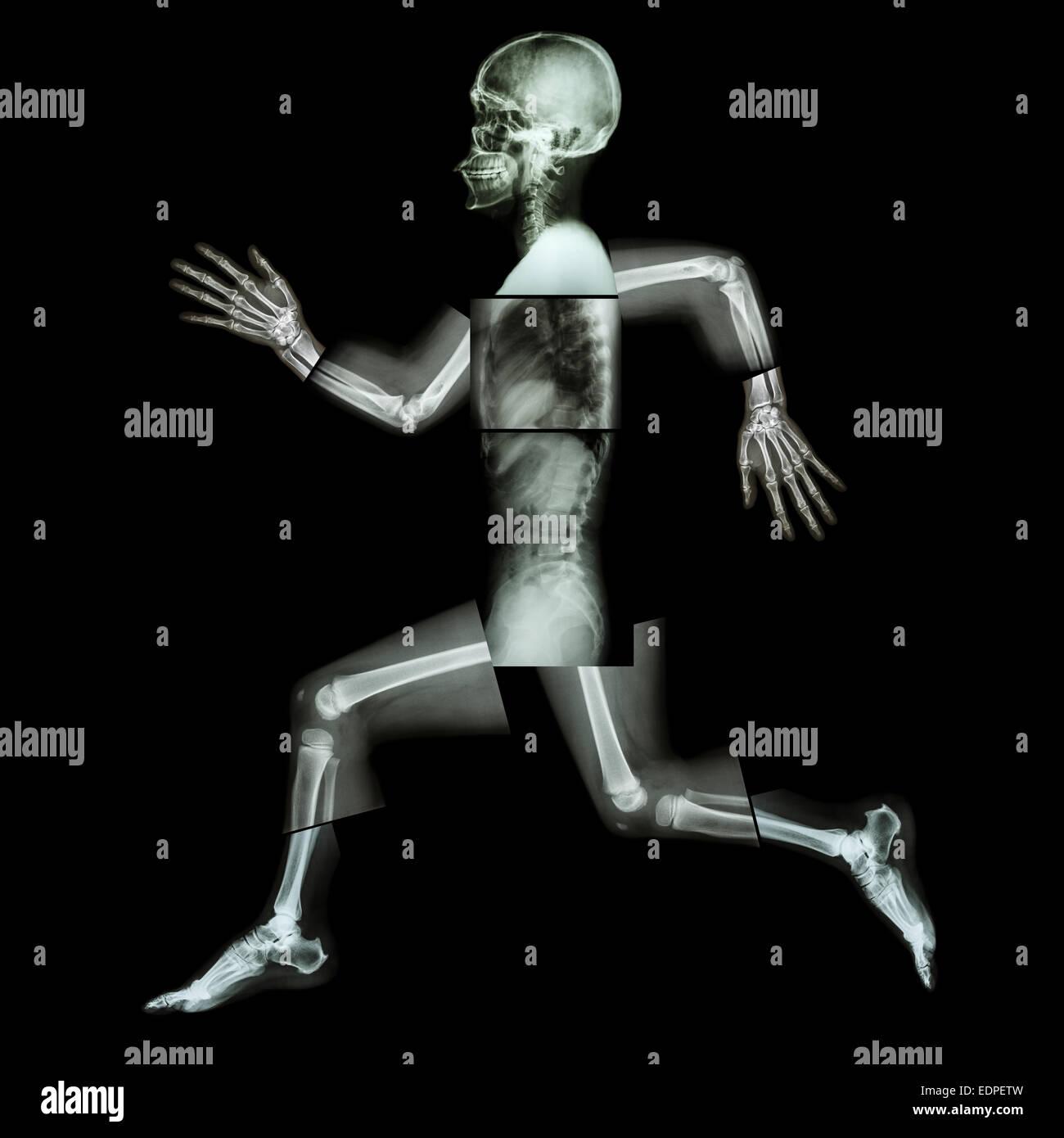 L'exercice aérobie (droits de l'os est en marche) ,(corps entier x-ray: tête, cou, épaule, Photo Stock